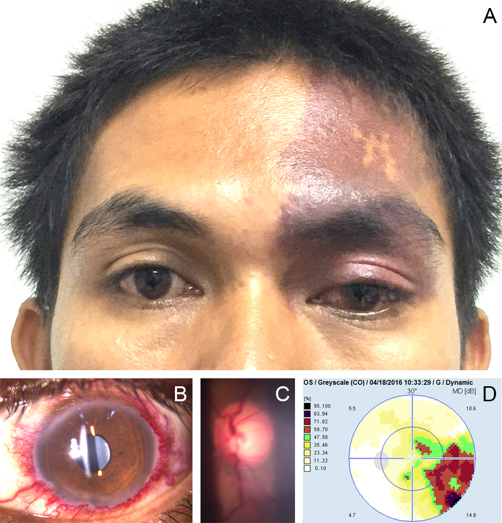 Figure 1    		Flat, well-defined, violaceous red patch with irregular borders (port-wine stain) on the left frontal area (A). Dilated and tortuous perilimbal vessels in the left conjunctiva (B). Cup-to-disc ratio of 0.7 and tortuous and dilated vessels on funduscopy of the left eye (C). Report of automated perimetry test showing left temporal quadrantanopsia (D).